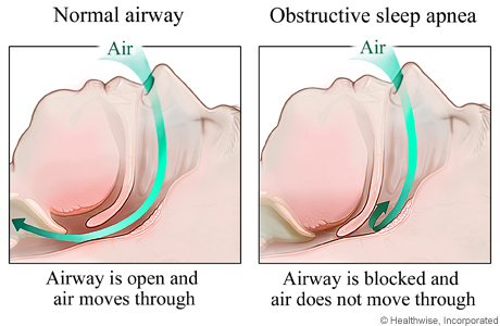 apnea diagram