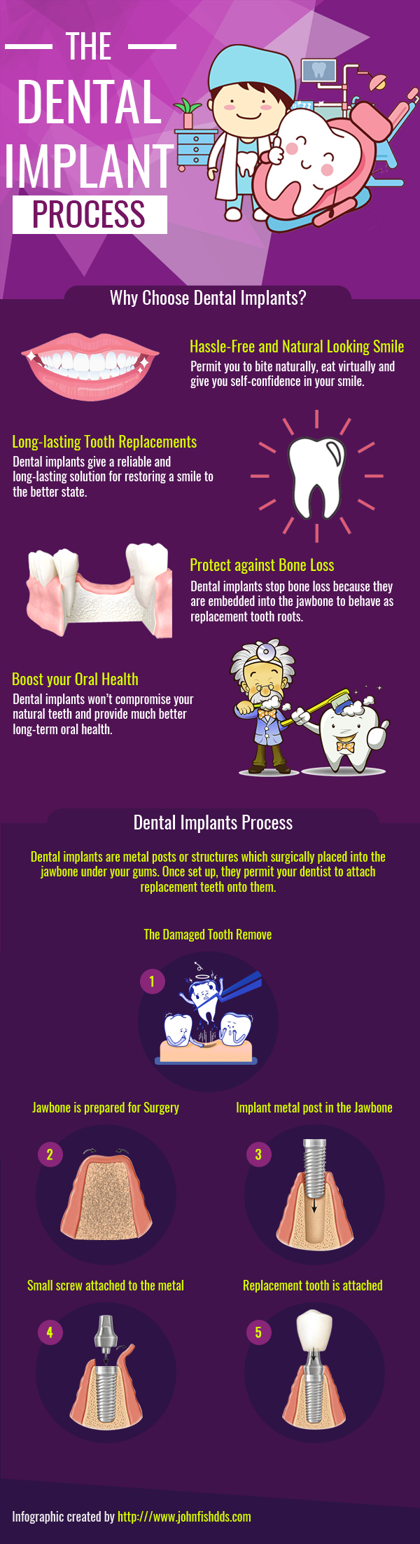 Dental Implant Process 1